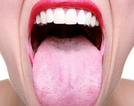article-new-intro-modal_ehow_images_a04_au_6h_stop-bad-breath-naturally-800x800