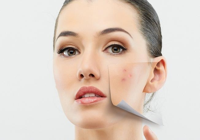 the problems of the skin