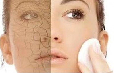 Get-Rid-Of-Dry-Skin-On-Face-400x259