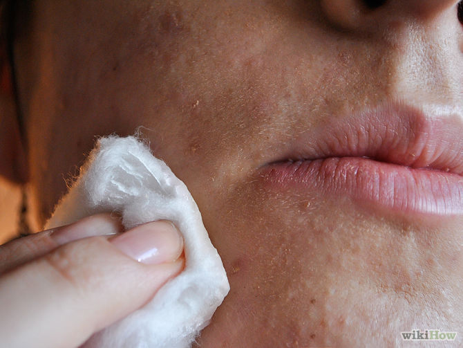 670px-Get-Rid-of-Acne-Scars-at-Home-Without-Chemicals-Step-1