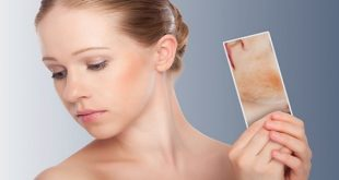How-to-Get-Rid-of-Acne-Scars-Naturally