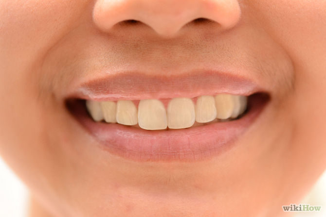 Get-Perfect-Teeth-Step-11