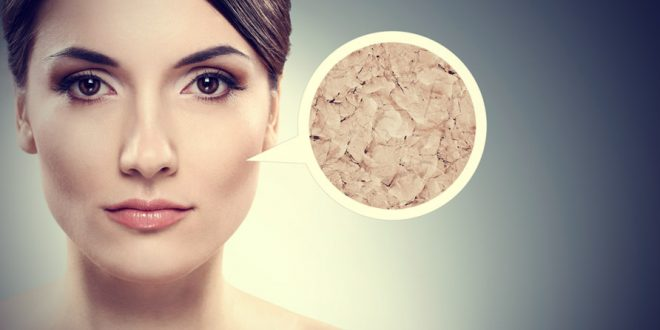 6-Effective-Ways-How-to-Treat-Excessively-Dry-Skin