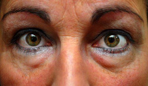Poches-yeux-500x292