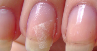header_image_how-to-fix-broken-nails-main-image-fustany